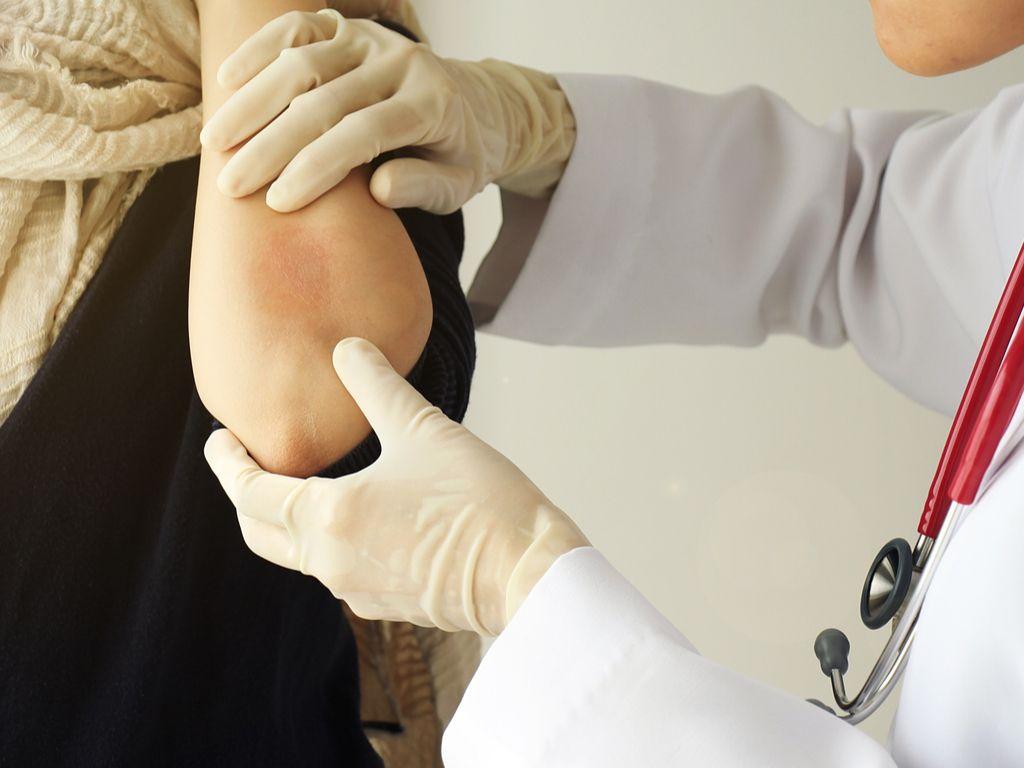 האם קיים טיפול טבעי לפסוריאזיס?